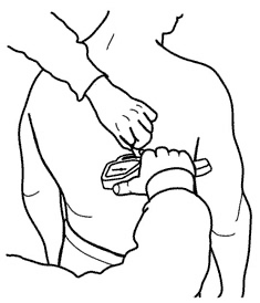 Subscapular Skinfold